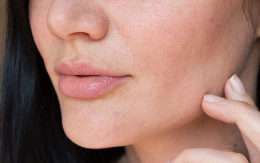 Lip Fillers: 7 Questions Answered